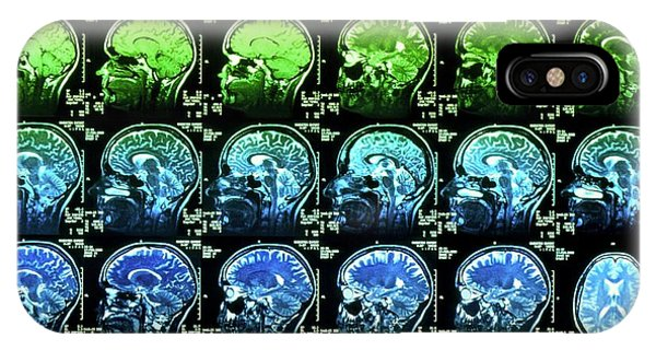 Brain Scan iPhone X Case - Coloured Mri Scans Of A Healthy Human Brain by Simon Fraser/science Photo Library