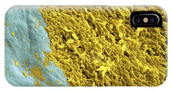 Coloured Sem Of A Dental Plaque Seen On A Tooth Phone Case by Dr Tony Brain/science Photo Library