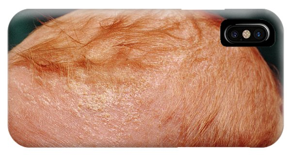 Cradle Cap On The Scalp Of Eight Week Old Baby Phone Case by Chris Priest/science Photo Library