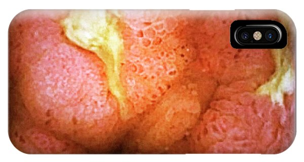 Chronic iPhone Case - Crohn's Disease by Gastrolab/science Photo Library