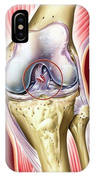 Cruciate Ligament Knee Injury Phone Case by John Bavosi