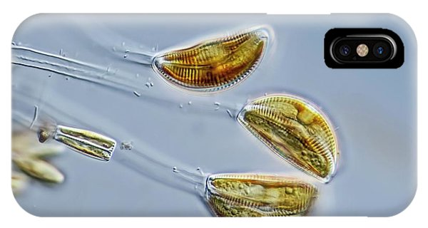 Unicellular iPhone Case - Cymbella Sp. Diatoms by Gerd Guenther