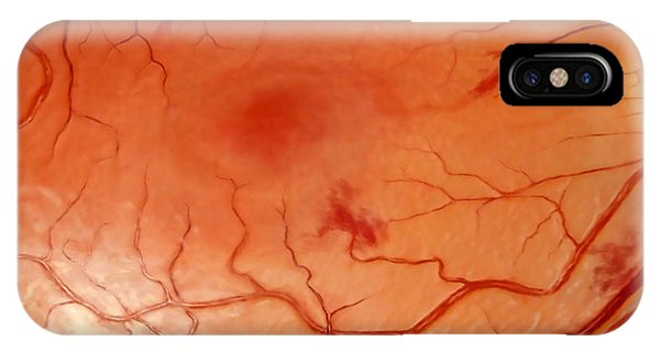Flow Visualization iPhone Case - Damaged Retina, Hypertension by Anatomical Travelogue