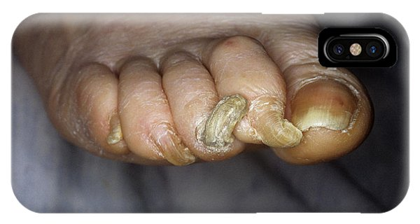 Deformed Toenails Phone Case by Mike Devlin/science Photo Library
