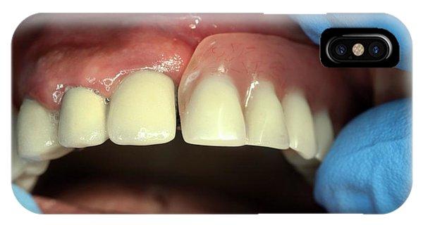 Dental Bridge And Denture Phone Case by Dr Armen Taranyan / Science Photo Library