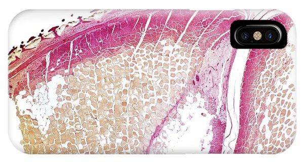 Dogfish Skin IPhone Case