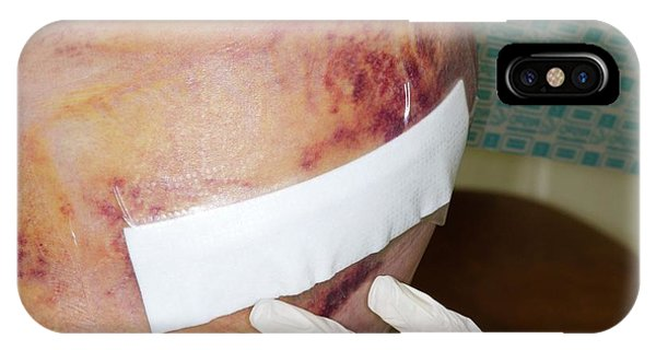 Dressing iPhone Case - Dressing A Wound After Hip Surgery by Dr P. Marazzi/science Photo Library