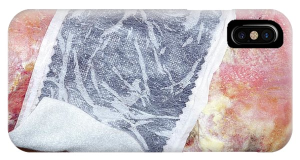 Chronic iPhone Case - Dressing For Chronic Venous Ulcers by Dr P. Marazzi/science Photo Library