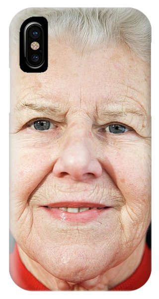Elderly Woman Smiling Phone Case by Cristina Pedrazzini/science Photo Library