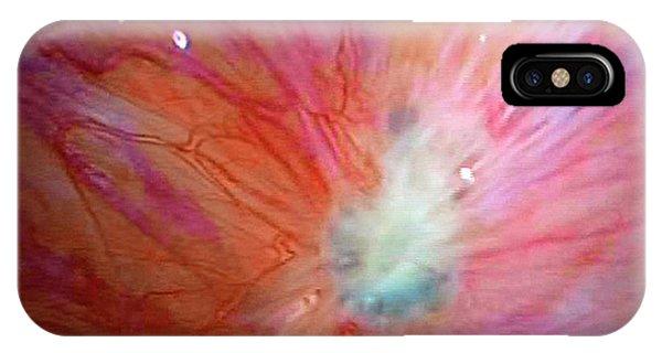 Endometriosis Phone Case by Dr Najeeb Layyous