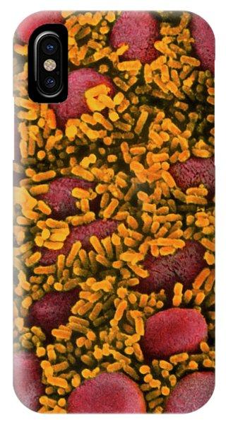 Escherichia Coli Bacteria In The Gut Phone Case by Em Unit, Vla/science Photo Library