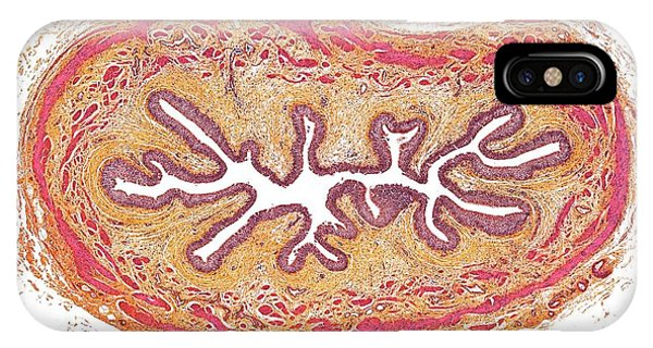 Esophagus iPhone Case - Esophagus by Microscape