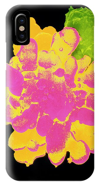False-col Sem Of T-lymphocyte Killer Cell Phone Case by Dr Andrejs Liepins/science Photo Library