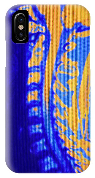 Brainstem iPhone Case - False-colour Nmr Image Showing The Neck Region by Mehau Kulyk/science Photo Library