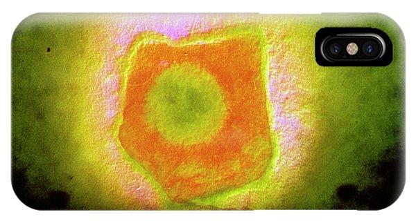Virus iPhone Case - False-colour Tem Of An Epstein-barr Virus Particle by Institut Pasteur/unite Des Virus Oncongenes/science Photo Library