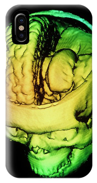 Brain Scan iPhone X Case - F/colour 3-d Ct Scan Of Human Brain Within Skull by Gjlp/science Photo Library