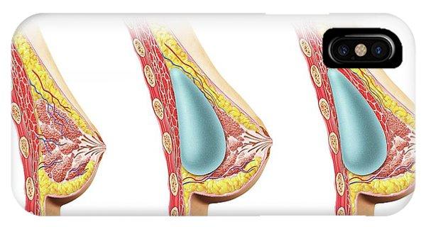 Female Breast Implant Phone Case by Leonello Calvetti