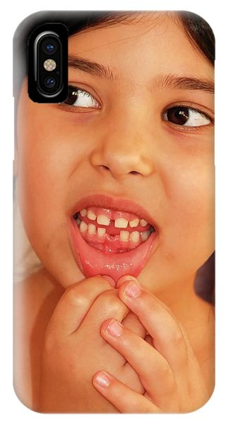 Girl With Missing Tooth Phone Case by Photostock-israel