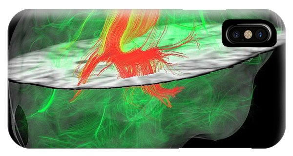 Nerves iPhone Case - Glioblastoma Brain Tumour by Sherbrooke Connectivity Imaging Lab/science Photo Library