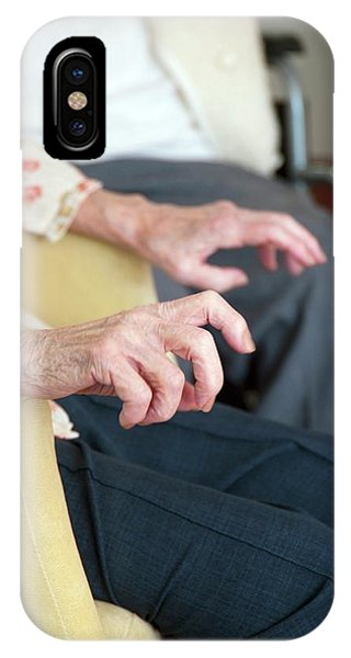 Assisted Living iPhone Case - Hands Of An Elderly Woman by John Cole