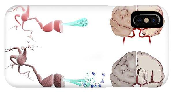 Healthy And Alzheimer's Brains Phone Case by Gunilla Elam