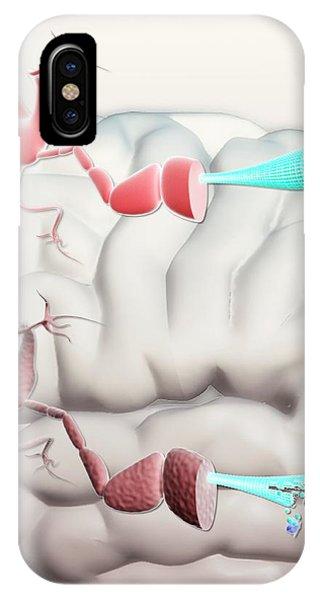 Cutout iPhone Case - Healthy And Alzheimer's Neurons by Gunilla Elam
