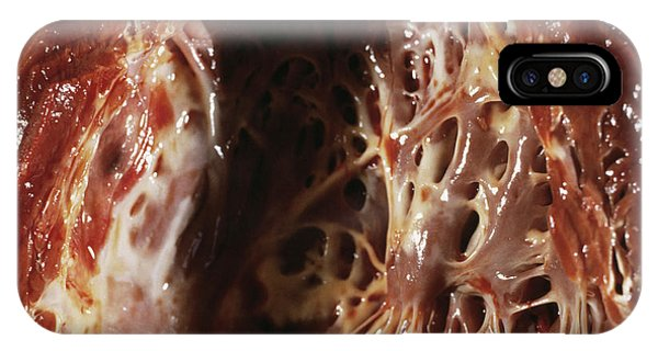 Heart Fibroelastosis Phone Case by Cnri/science Photo Library