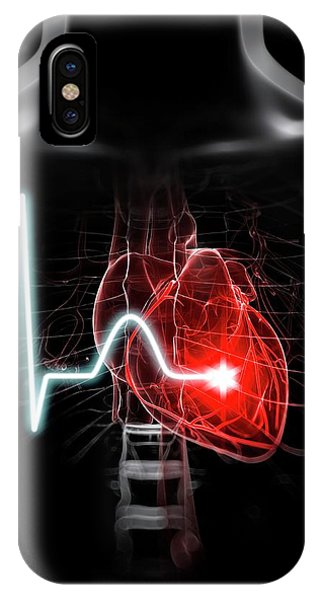 Heartbeat Phone Case by Sciepro/science Photo Library