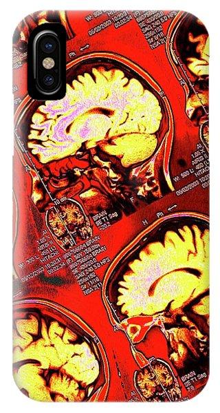 Brain Scan iPhone X Case - Human Brain by Larry Berman
