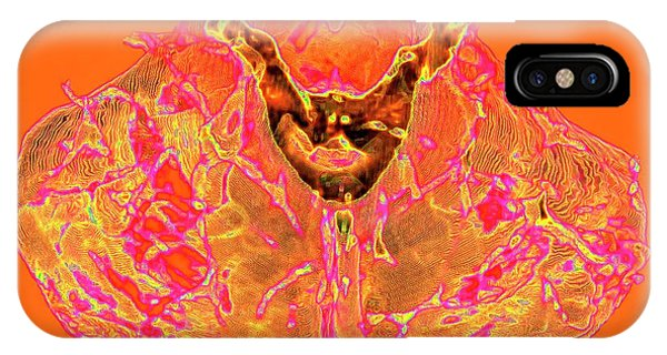 Brainstem iPhone Case - Human Cerebellum by K H Fung/science Photo Library