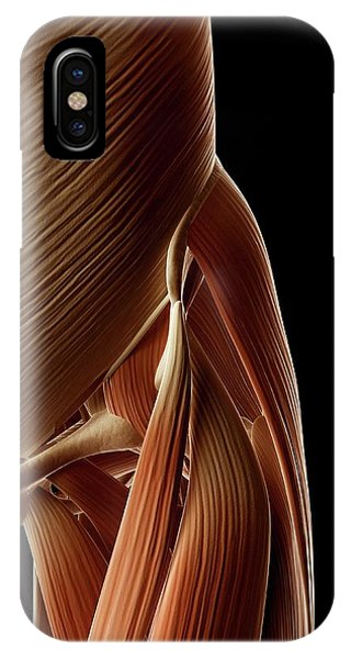 Human Hip Muscles Phone Case by Sebastian Kaulitzki
