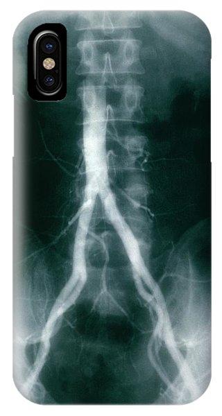 Iliac Arteries Phone Case by Cnri/science Photo Library