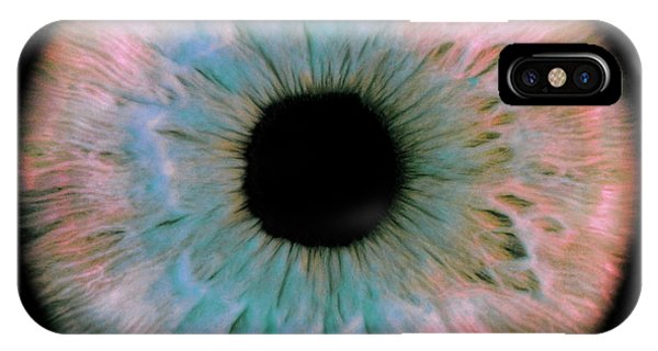Eye Ball iPhone Case - Iris by David Parker/science Photo Library