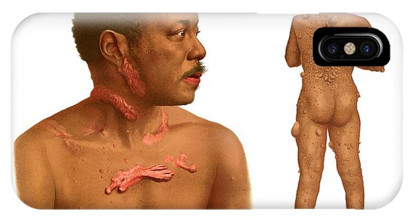 Keloids And Fibromas Phone Case by Us National Library Of Medicine/science Photo Library