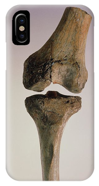 Knee Joint Of Australopithecus Afarensis Phone Case by John Reader/science Photo Library