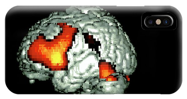 Neurology iPhone Case - Language-generation Brain Activity by Wellcome Dept. Of Cognitive Neurology/ Science Photo Library