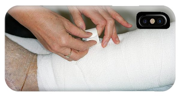 Dressing iPhone Case - Leg Ulcers Dressed With A Bandage by Dr P. Marazzi/science Photo Library