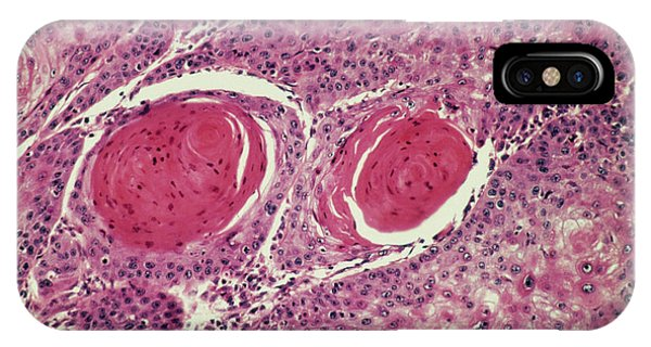 Light Micrograph Of Squamous Cell Carcinoma Phone Case by Science Photo Library.