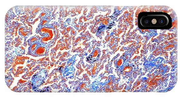Chronic iPhone Case - Light Micrograph Of The Lung In Chronic Pneumonia by Astrid & Hanns-frieder Michler/science Photo Library
