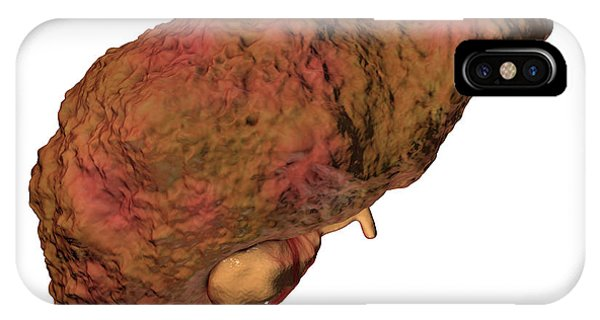 Alcoholism iPhone Case - Liver Cirrhosis by Kateryna Kon/science Photo Library