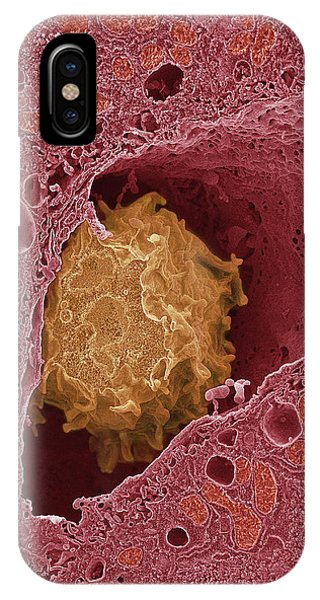 Liver Macrophage Cell Phone Case by Thomas Deerinck, Ncmir/science Photo Library