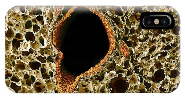Tissue iPhone Case - Lung Tissue by Microscopy Core Facility, Vib Gent