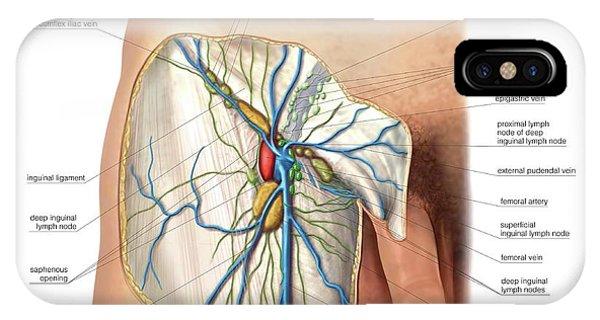 Inguinal Lymph Nodes iPhone Cases | Fine Art America
