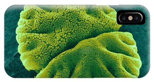 Alga iPhone X Case - Micrasterias Angulosa, Algae, Sem by Science Source