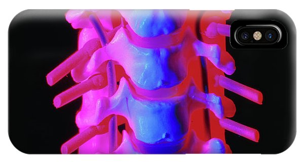 Spines iPhone Case - Model Of The Cervical Spine by Alfred Pasieka/science Photo Library