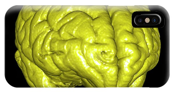 Neurology iPhone Case - Monkey Brain by Thierry Berrod, Mona Lisa Production/ Science Photo Library