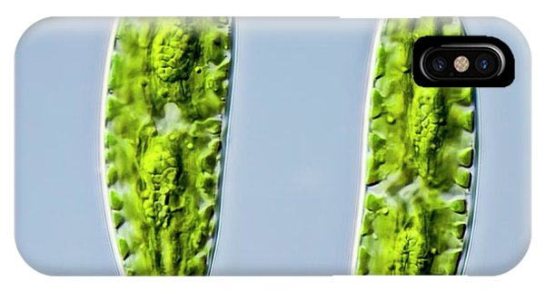 Aquatic Plants iPhone Case - Netrium Oblongum Green Algae by Gerd Guenther