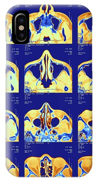 Brain Scan iPhone X Case - Nose And Sinuses by Alfred Pasieka