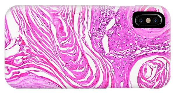 Esophagus iPhone Case - Oesophageal Cancer by Antonio Romero