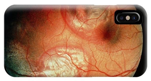 Eye Ball iPhone Case - Ophthalmoscope View Of Cricket Ball Eye Injury by Sue Ford/science Photo Library